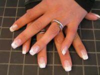behandling af negle