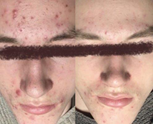 Akne behandling dreng