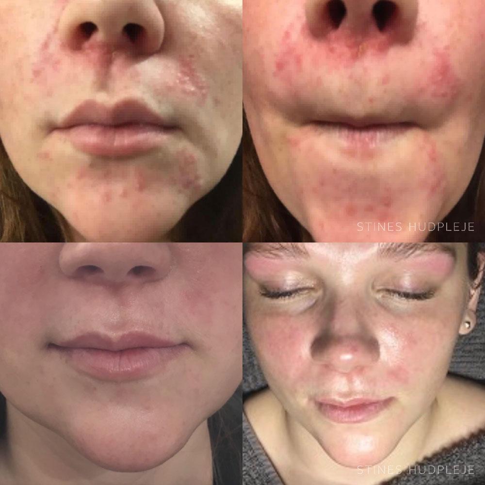 perioral dermatit naturlig behandling