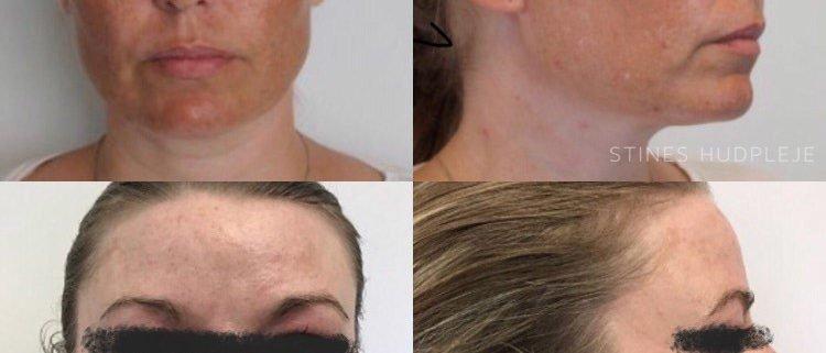 Pigment behandling - pigmentering