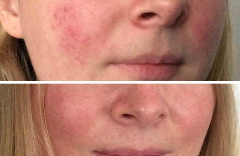 Nanna før og efter rosacea
