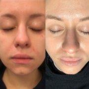 Eksem og Perioral dermatitis1