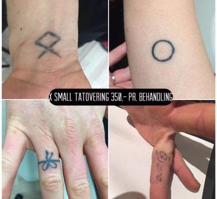 Fjernelse af tatoveringer med laser