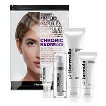 homecare kit cr er et kit bestående af produkter som kan hjælpe på rødme og irriteret hud