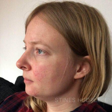 4-Nanna-før-rosacea-heal-up-behandling-1.jpg