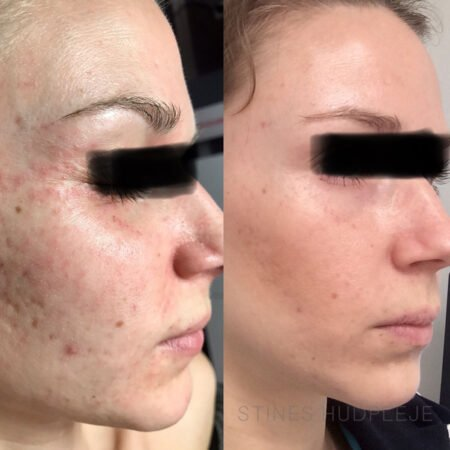 Perioral-Dermatit-før-efter-1.jpg