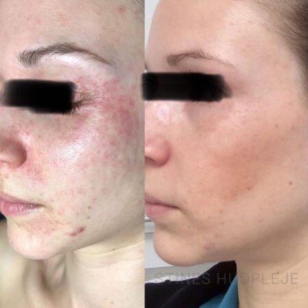 Perioral-Dermatit-før-efter-2.jpg