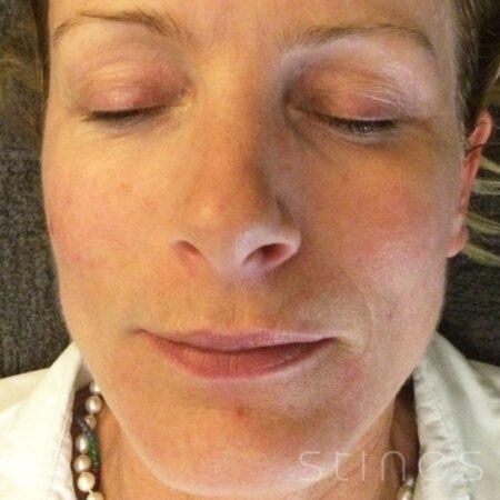 efter-rosacea-behandling1.jpg